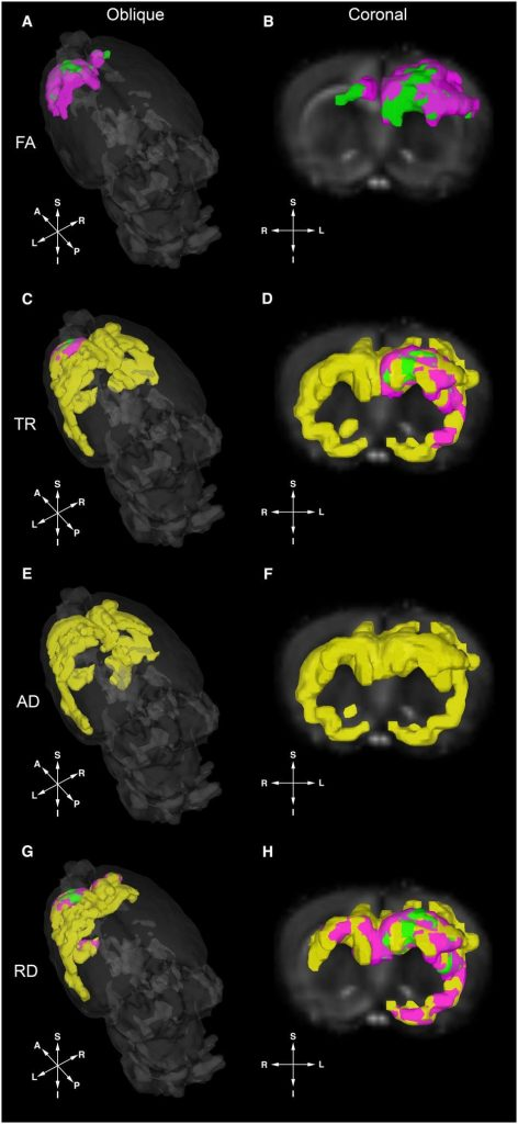 MRI displaying brain structural features that are specific to diet treatments.